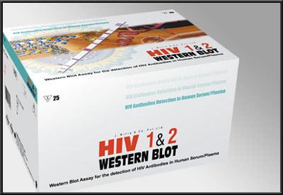 HIV Western Blot
