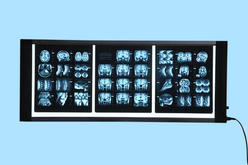 Three Film X Ray Viewer