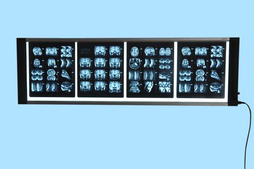 Medical X-ray illuminator (X-ray view box)