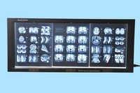 Digital Three Film Illuminator with Film Sensor