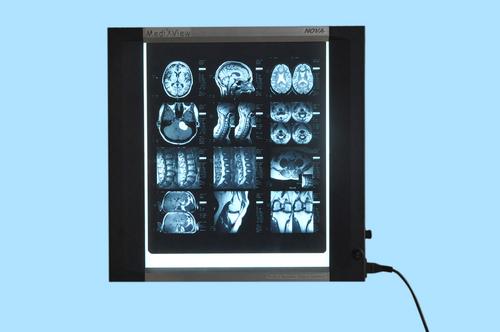 X-ray illuminator (X-ray view box)