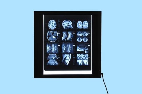 X-Ray Viewers (Basic Model)