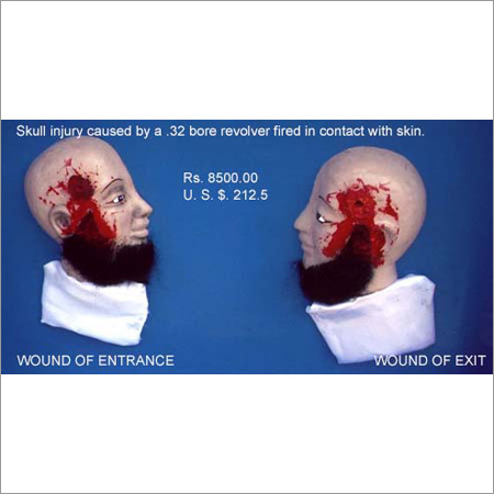 Skull Injury Caused Model