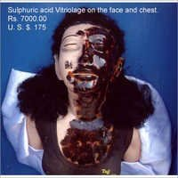 Sulphuric Acid Vitriolage Face Model