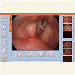 Digital Endoscopy Display