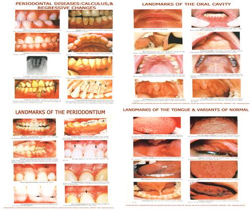Dentistry Charts