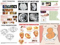 Charts on Obstetric & Gynaecology