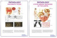 Pathology Charts