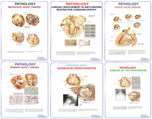 Charts on Pathology