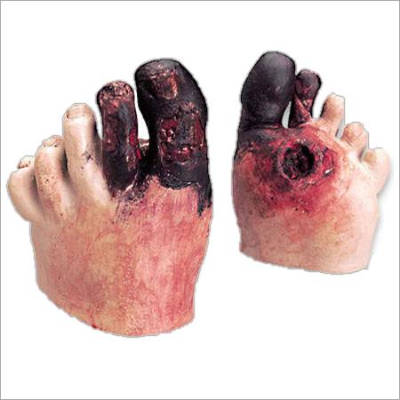 Diabetic Foot Model