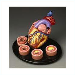 Heart With Arteries Models