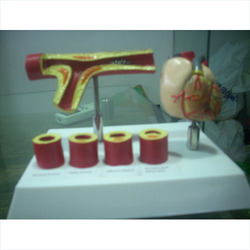 Arteries With Heart Models