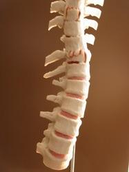 Fractured Spine Model