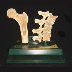 Osteoporosis Models