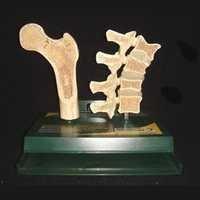 femur & vertebrae osteoporosis model