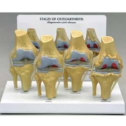 Knee Arthritis And Osteoporosis Model