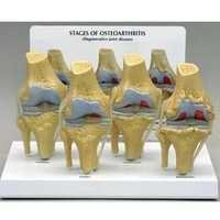 Knee Arthritis And Osteoporosis Model
