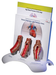 Pulmonary Arterial Hypertension Model