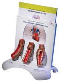 肺动脉高血压模型