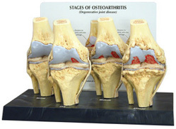 Knee Arthritis Model