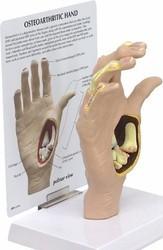 Hand Osteoarthritis Model