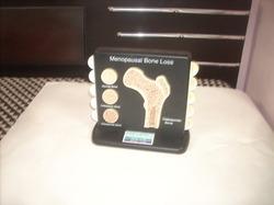 Menopausal Osteoporosis Model