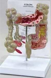 Liver & Gastro Models