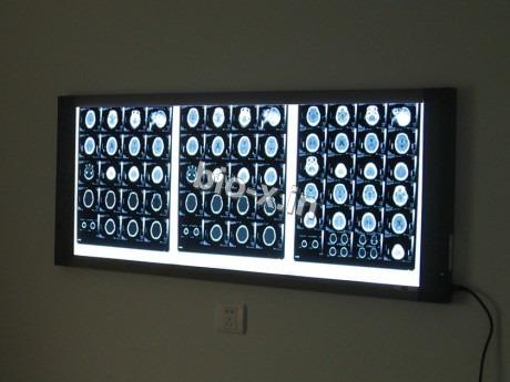 X Ray Film Illuminator
