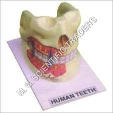 Human Teeth Model On Board