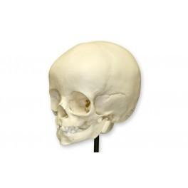 Foetal Child Skull (Infant Skull)