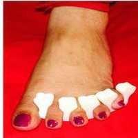 Toe Comb Splint