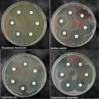 Antibiotic Sensitivity Testing Services