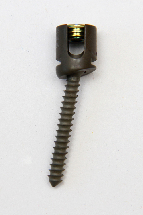 Cervical Lateral Mass Screw