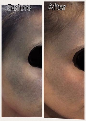 Dermato-cosmetology Laser Services