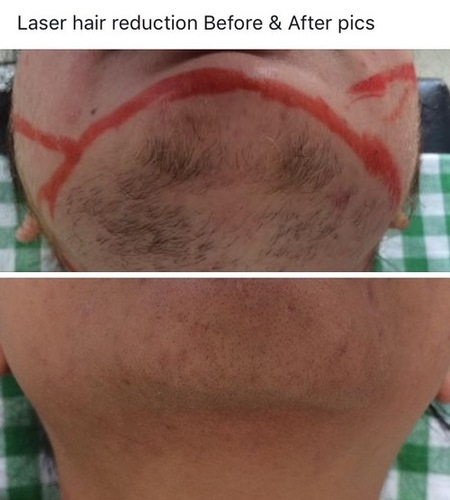Laser Hair Removal Services