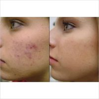 Acne Treatment Services