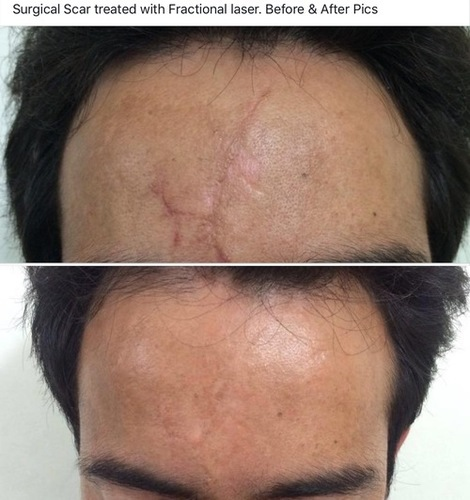 Scars Laser Treatment Services