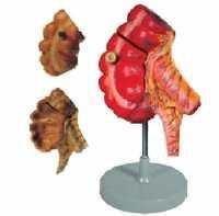Appendix And Caecum ( BEP/A 12006 )