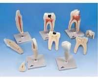 Human Tooth Set ( BEP-305-3 )