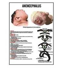 INC19 - Anencephalus Charts