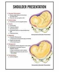 INC09- Shoulder Presentation Charts
