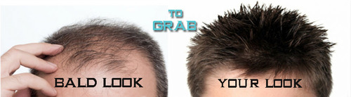 Hair Patch in Delhi- Hair Patch Price,Shop India