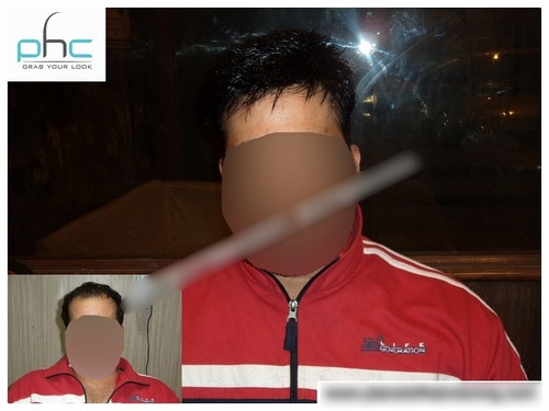 Non Surgical Hair Transplantation