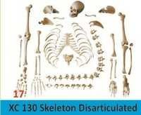 Skeleton Disarticulated