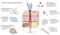 Laser Therapy Clinical Effects