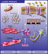Laser Therapy Effects