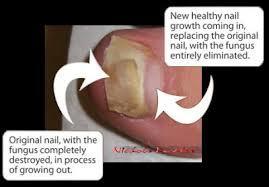 Undecanoic Acid - Nail Care Product