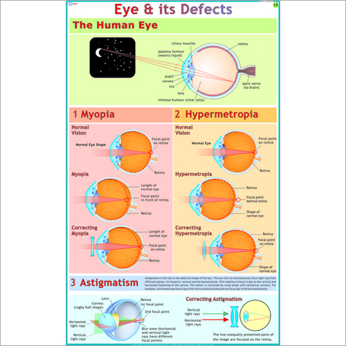 The Eyes : Its Defects & Remedies Chart