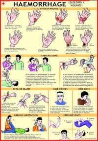 Haemorrhage (Bleeding & Wounds) Chart