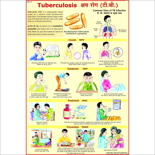 Tuberculosis Causes Chart